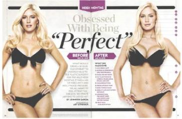 heidi-montag-before-and-after-plastic-surgery-photos-400