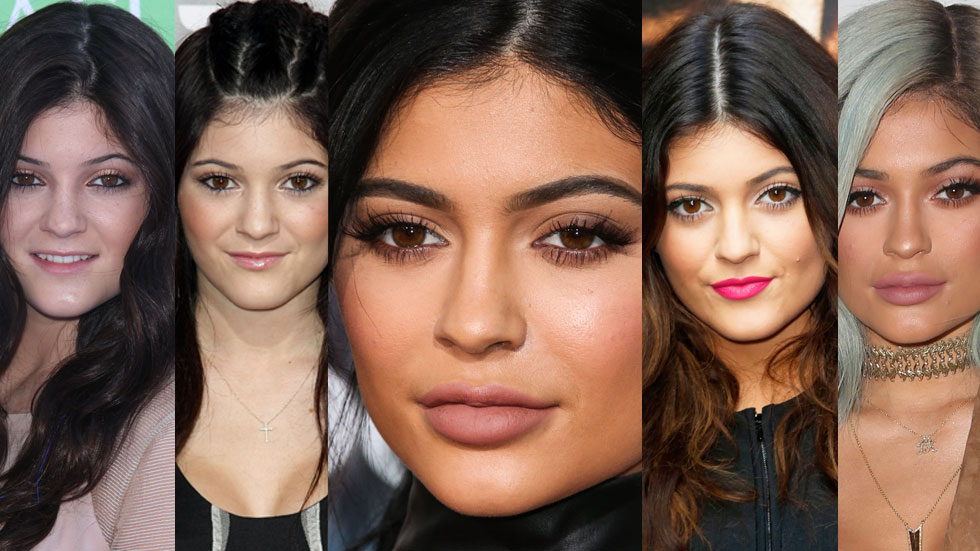 kylie-jenner-face-change-transformation-lips-surgery